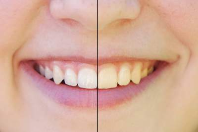 Best Way To Whiten My Teeth Naturally